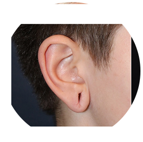 Ear-Lobe-Repair