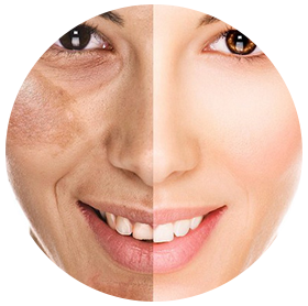 Melasma-Removal-Treatment