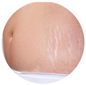 Stretch-Mark-Treatments